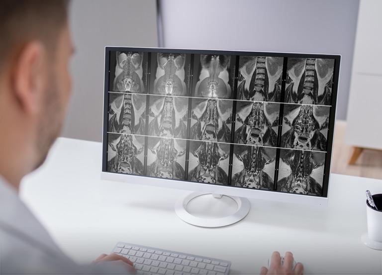 Klinika Schorzeń Kręgosłupa iStawów Rezonans